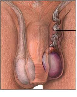 torsione del pene
